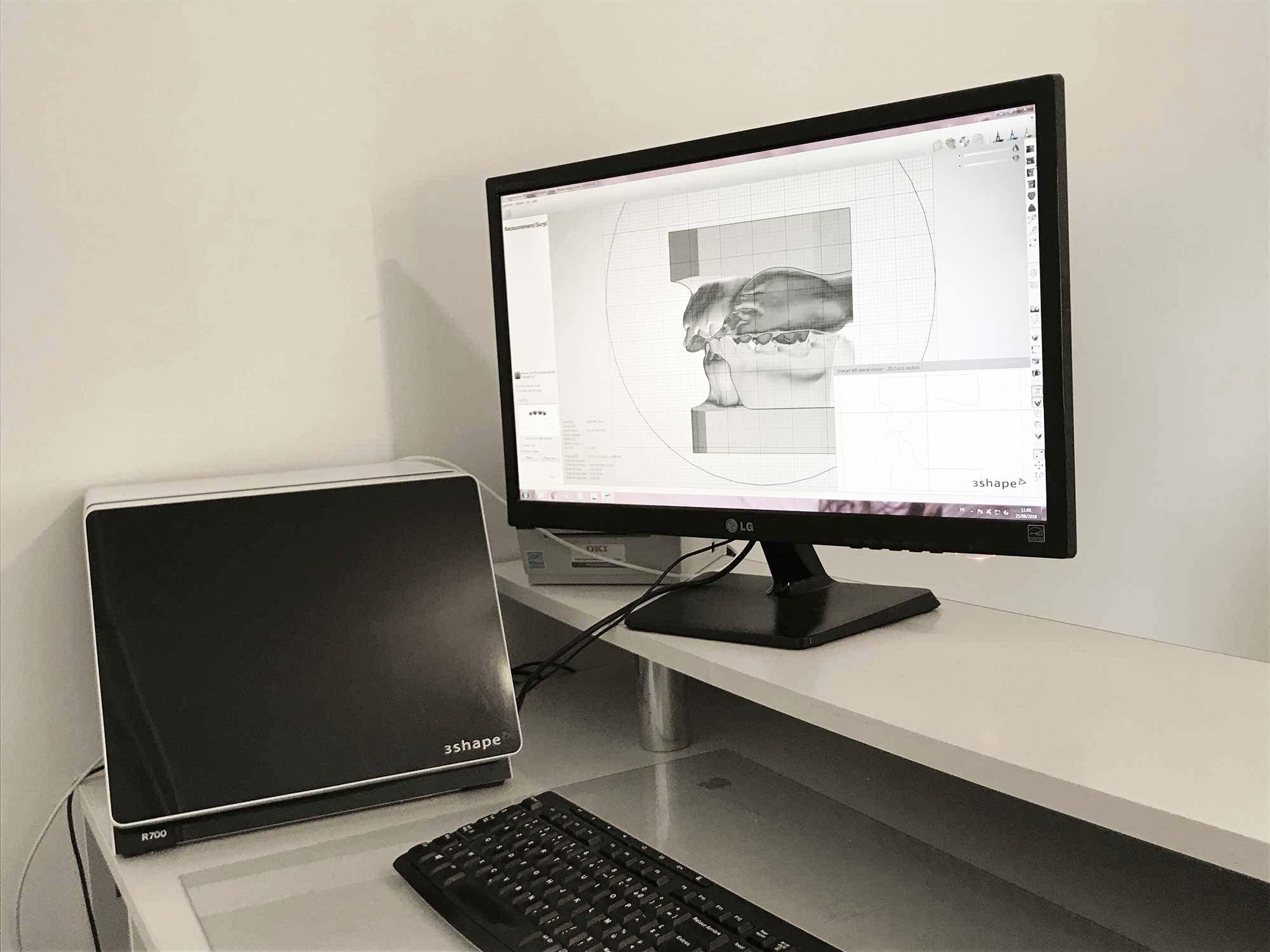 Analyse CFAO - Laboratoire Lionet