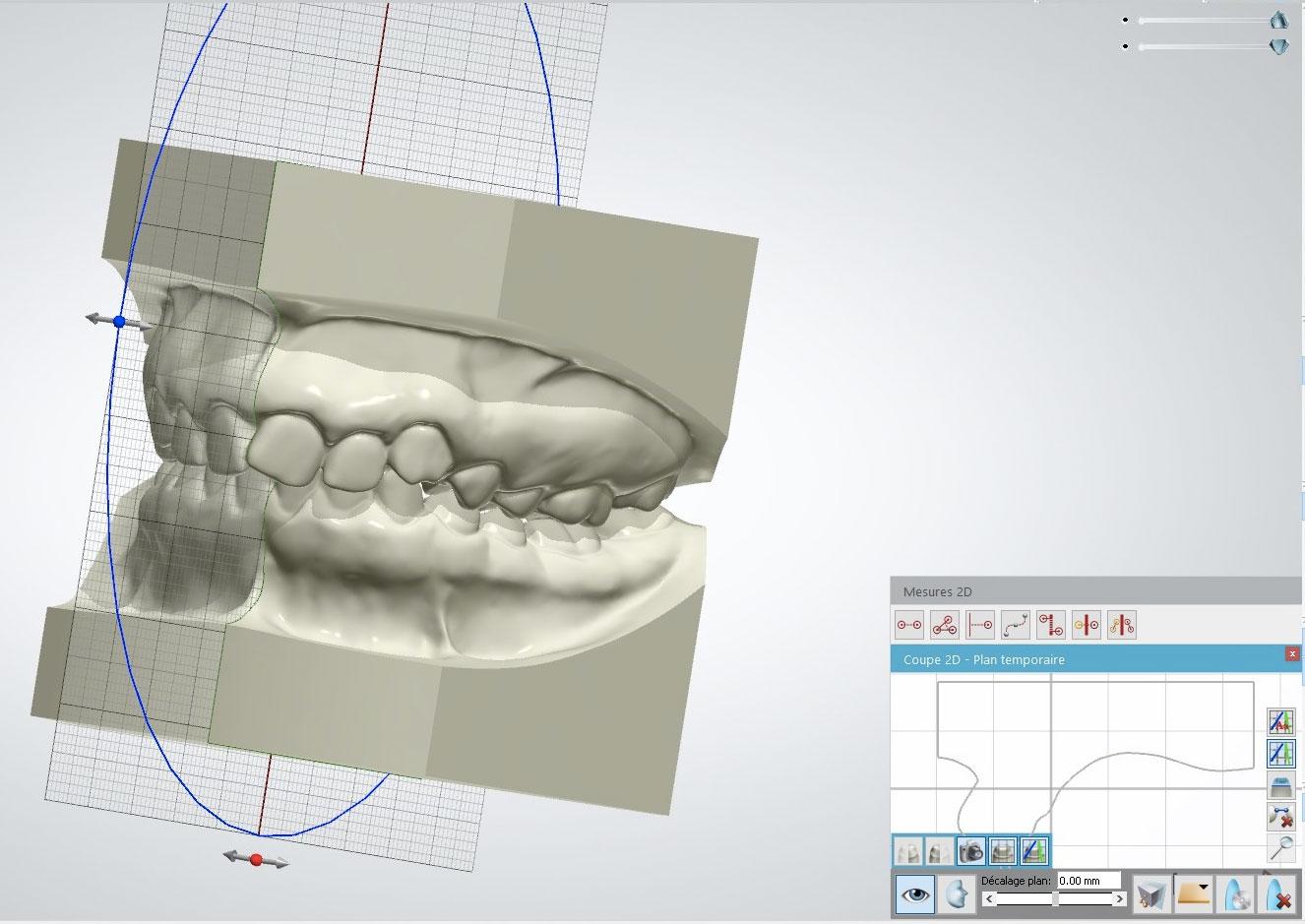Modèle étude 3D - Laboraoitre Lionet